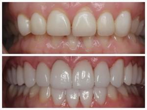 جراحی دندان