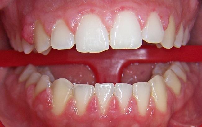 دندان پزشکی در بارداری