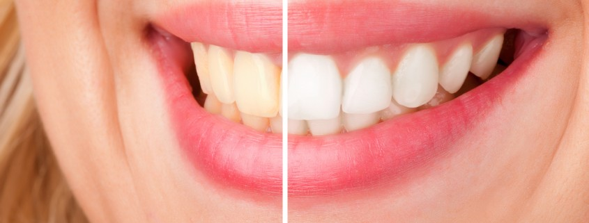 Before and after of a dental whitening procedure
