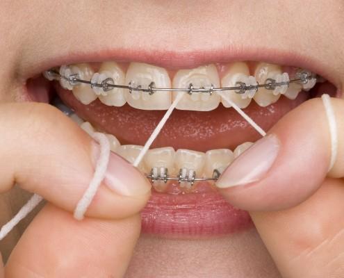 braces-flossing