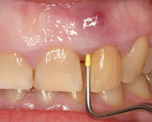 Dental-Abscess-5