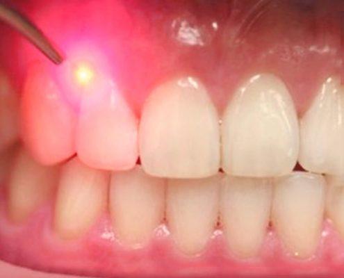 لیزر در درمان بیماری های دهانی